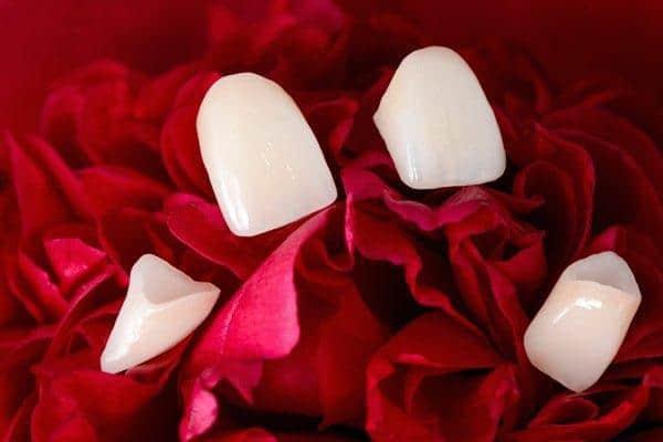 dental-veneers-detail